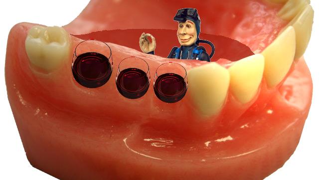 mdi_mini_implant_single_tooth_replacement_braun_dental_2_1__qno3